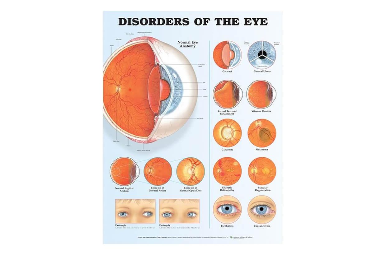 reabilitare pentru boli oculare