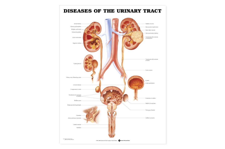 Tractul urinar - boli 50,8x66cm