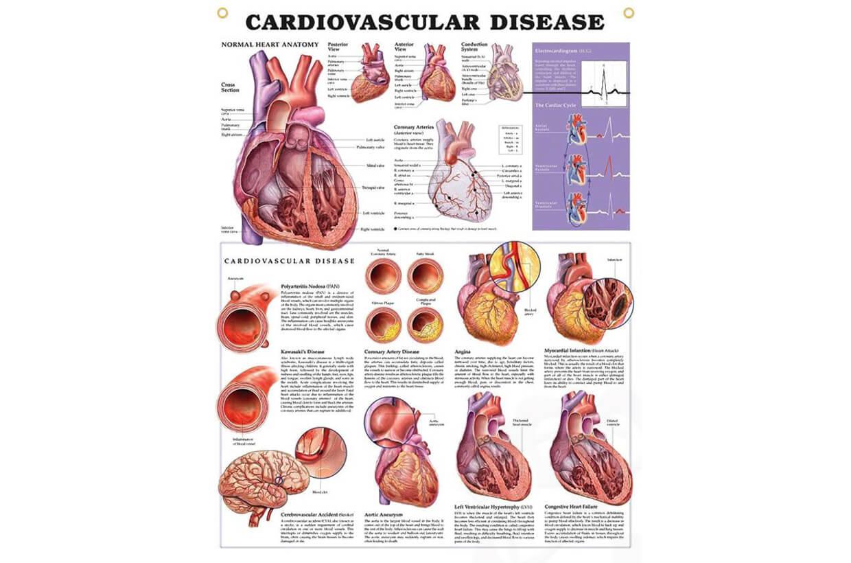 Boli cardiovasculare 50,8x66cm